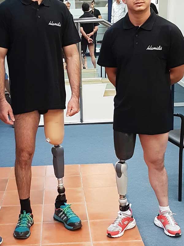 Τεχνητά Πόδια – Τεχνητά Μέλη – Μηριαίες προθέσεις
